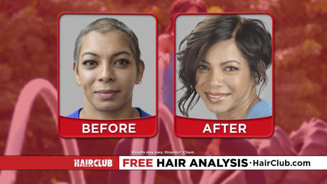 Hair Club – All You Got To Do